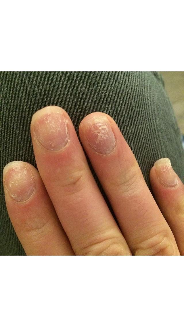 Pose De Faux Ongles Orteils Soins Des Ongles
