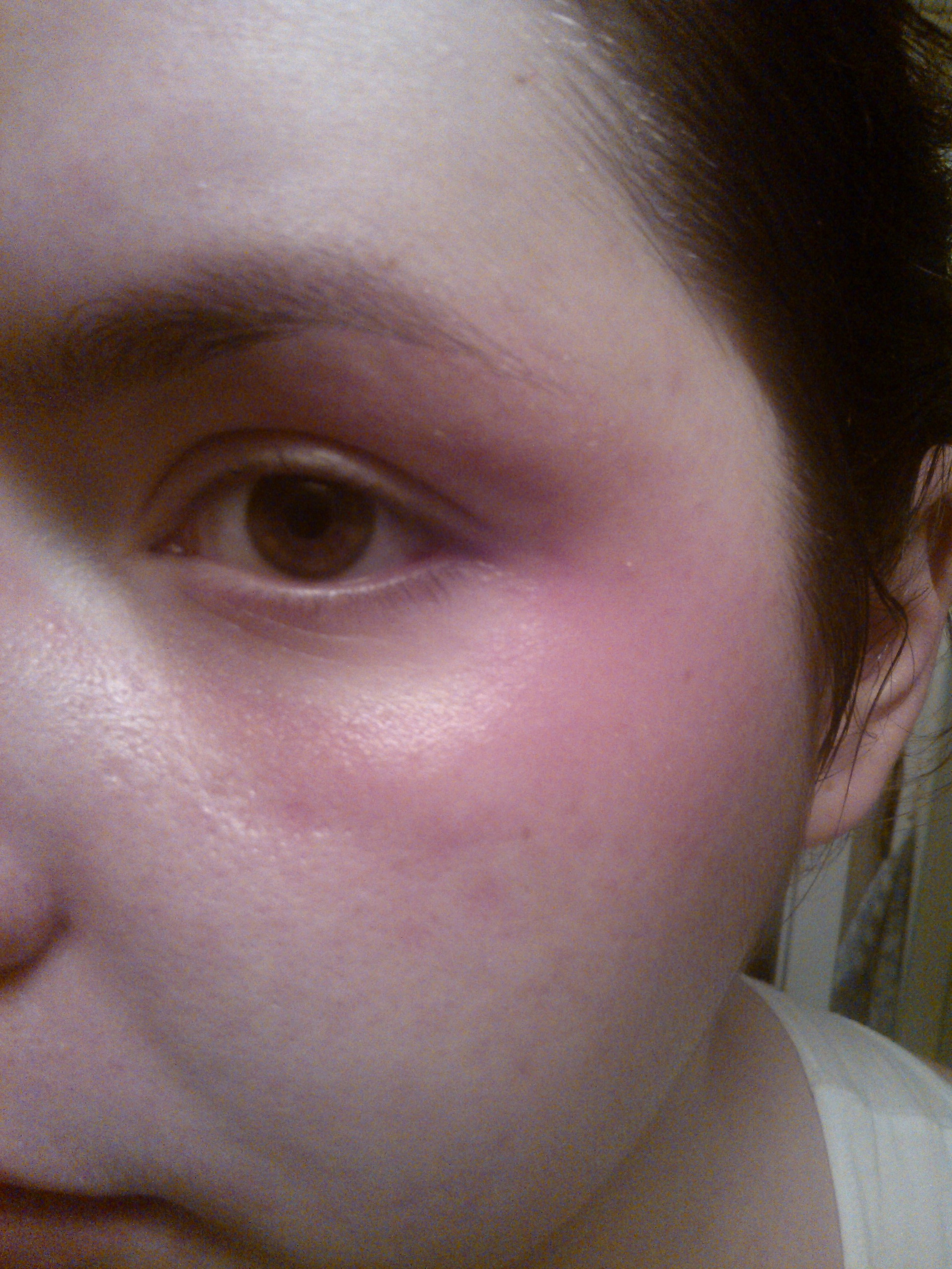 symptômes d allergie